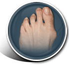 Bunion Icon